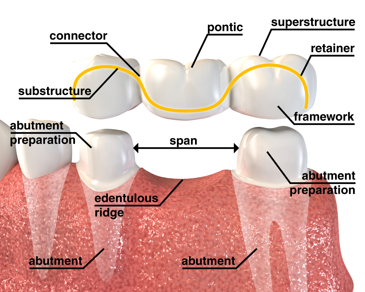 Dental Crown Vs Cap Dental Crowns A Quick Fix That Goes A